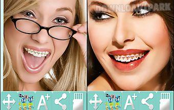 Dental brace booth