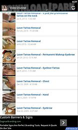 laser tattoo removal tips
