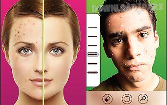 Pimple remover