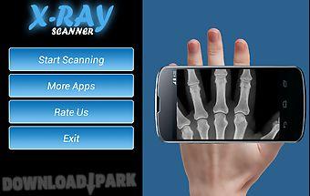 Xray scan prank